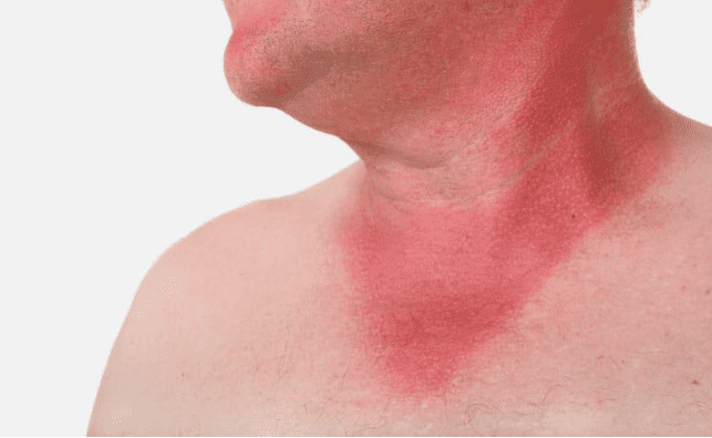 Sun Burn Facts and Skincare Tips