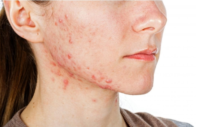 What Can Clear Severe ACNE