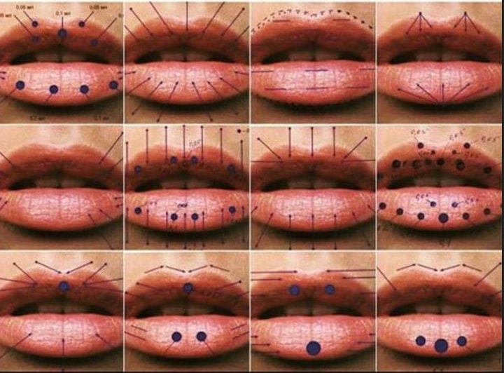 Lip Enhancement and Lip Fillers