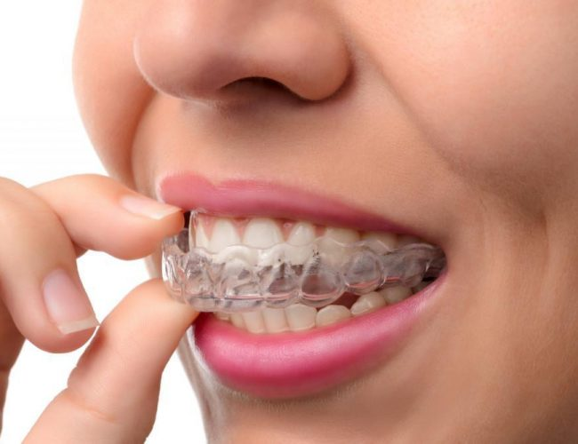 5 Ways to Avoid Braces and get Straight Shiny Teeth