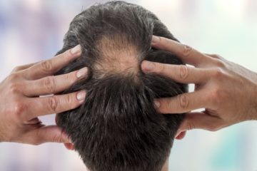 How to Effectively Improve Young Baldness that You Can Do Right Now