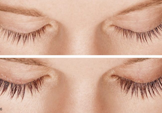 What Causes Premature Eyelash Fall and What Can Be Done to Prevent It?