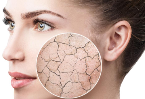 Top 8 Beauty Tips for Dry Skincare Routine
